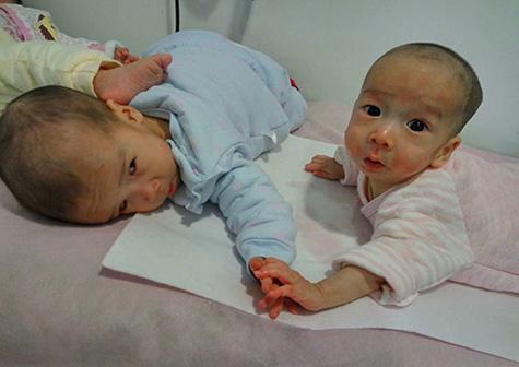 特殊儿童康复项目