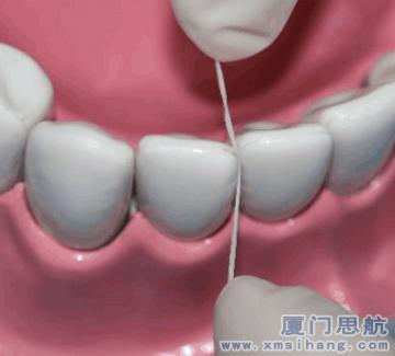 牙线有效清洁牙齿上的牙渍牙垢