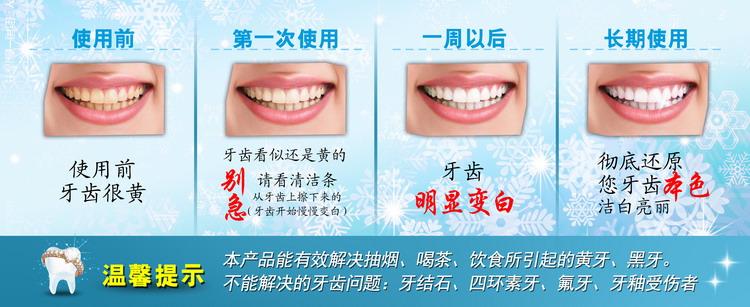 美白洁牙擦清洁牙渍的使用效果