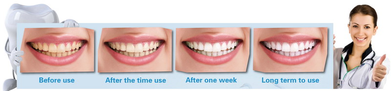 美佳欣洁牙绵-快速美白牙齿-神奇牙齿清洁刷烟牙一擦白烟牙克星使用对比图