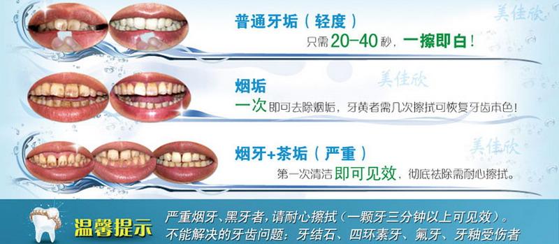 美佳欣洁牙绵条效果一擦白烟牙克星 用什么可以美白牙齿