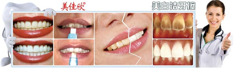 美白洁牙擦祛除牙垢一次见效,数次还原牙齿本色