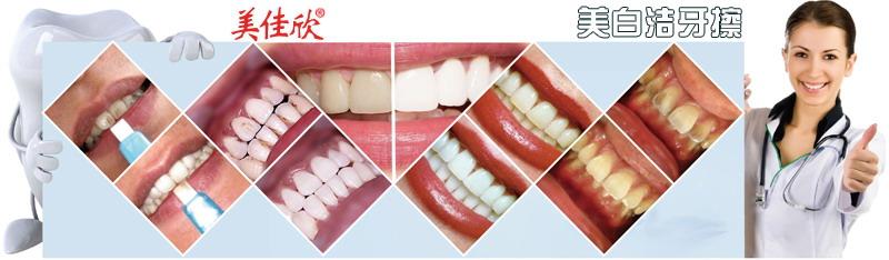 新型洁牙产品美白洁牙擦去烟渍牙渍