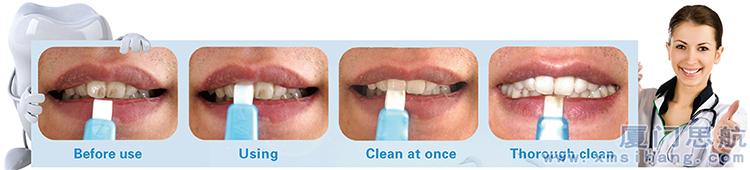 厦门思航新型洁牙产品不伤牙釉美白洁牙擦使用方法及擦拭烟渍效果