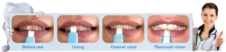 share nano effective home teeth whitening kit .jpg
