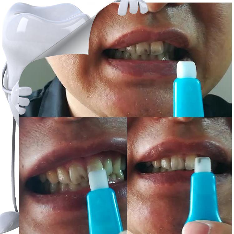 潔牙擦清潔前后對比
