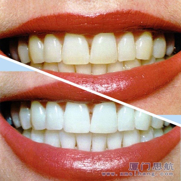 牙齿美白洁牙擦