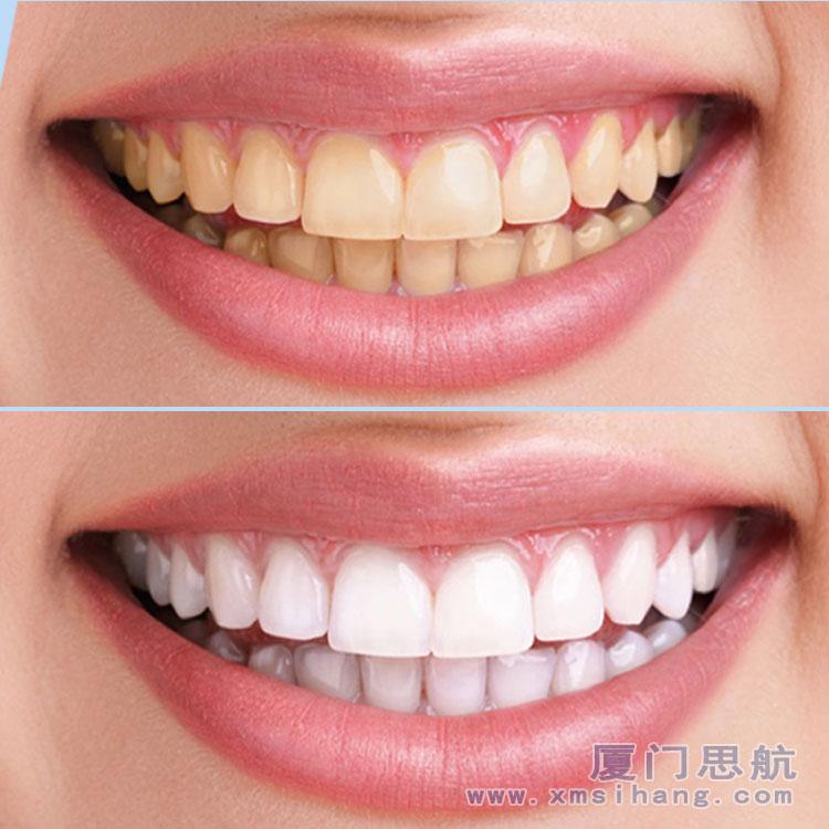 口腔护理洁牙擦 MJX 901