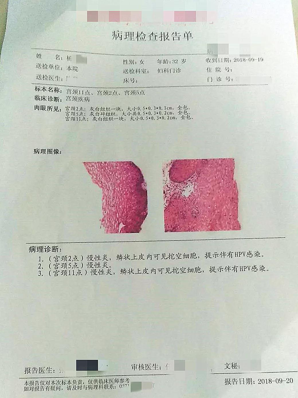 慢性宫颈炎hpv感染_红卡清除HPV逆转宫颈病变,高危型16阳性,一个疗程转阴,患者 ...