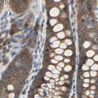 3分钟读懂细胞焦亡-affinity抗体