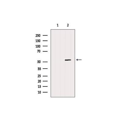 AF12275|affinity|GSDMD Antibody