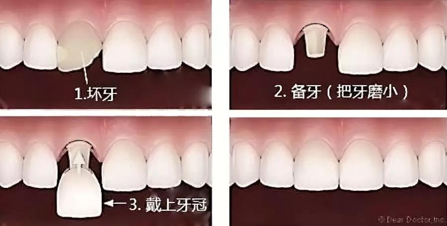 光固化快速成型,精准快速定制氧化锆陶瓷牙