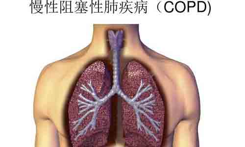 在鱼龙混杂的制氧机市场该怎么选择适合医疗制氧机